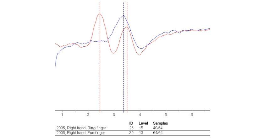 TrueSense DIY Input kit - biosignal sensor kit for reading ...