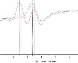 Electromyography(EMG) Sensor Data Sheet - slideserve.com